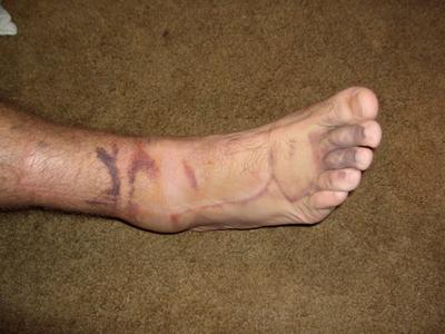 Z foot 1